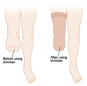 Amputated leg before and after using a shrinker.