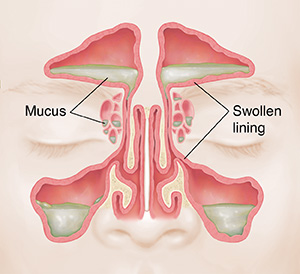 Front view of sinuses showing red, swollen lining and mucus.